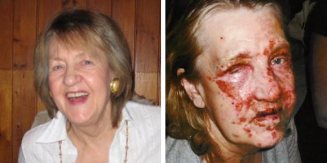 Example of the disfigurement drain cleaner accidents can cause. Photographs from http://www.dailyecho.co.uk/news/8253292.My_face_melted_when_drain_cleaner_exploded/